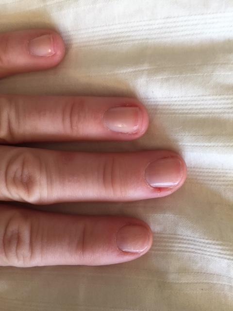 chewed nails
